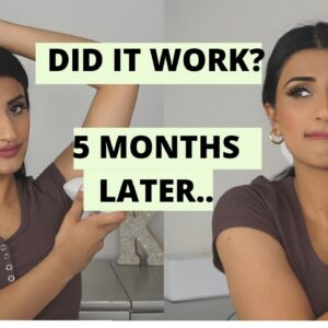 IPL LASER REVIEW...5 MONTHS LATER? DOES IT STILL WORK?