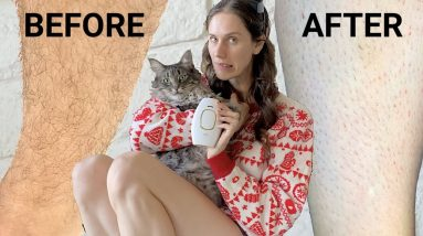 Does IPL Really Work? 6 Months Later: Does Kenzzi Really Work? Leg Hair Update